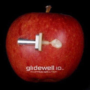 glidewell.io apple of your eye